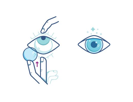 Смотря вверх, наложите линзу на глаз