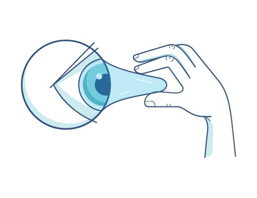 Могут ли контактные линзы прилипнуть к глазам?