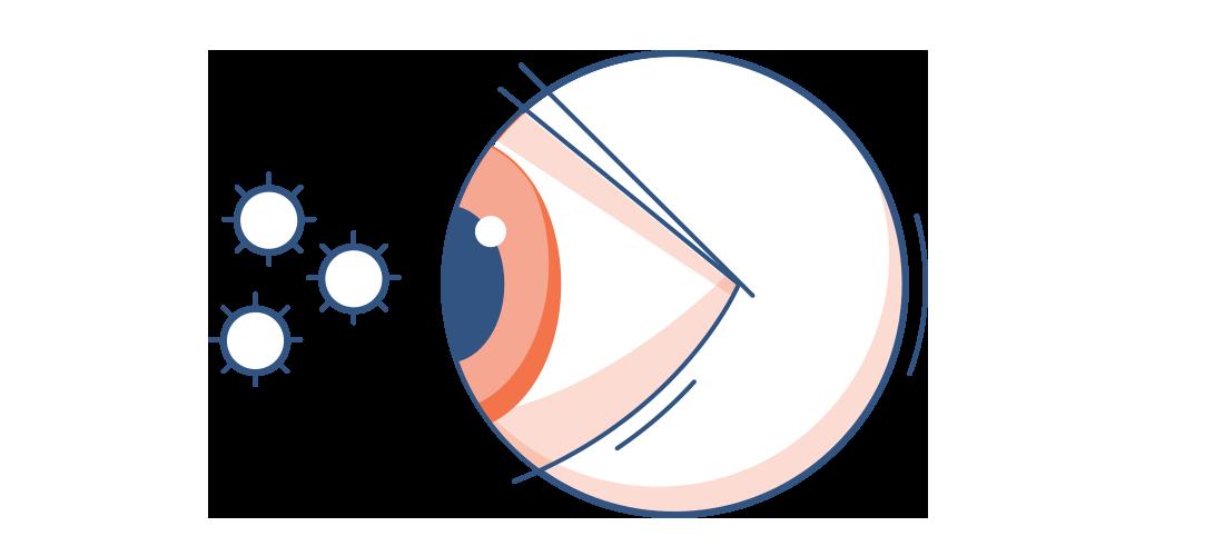 Симптомы аллергии глаз